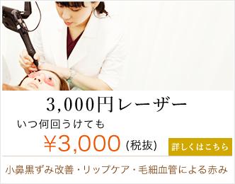 3000円レーザー