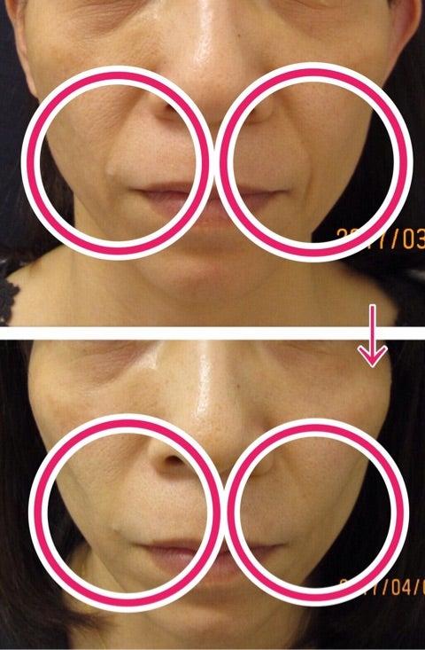 ヒアルロン酸でのほうれい線改善